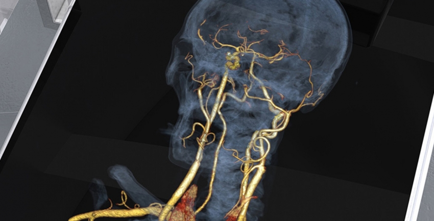 Photo of Interventional Neuroradiology